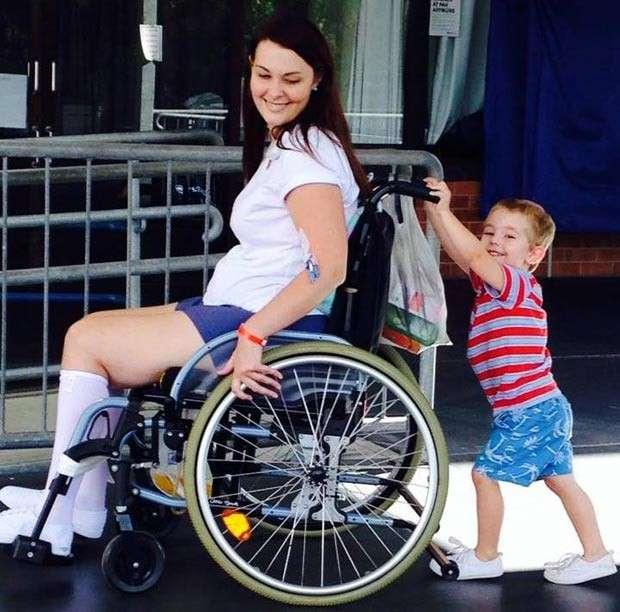 Australiana fica paraplégica após usar pincel de maquiagem emprestado