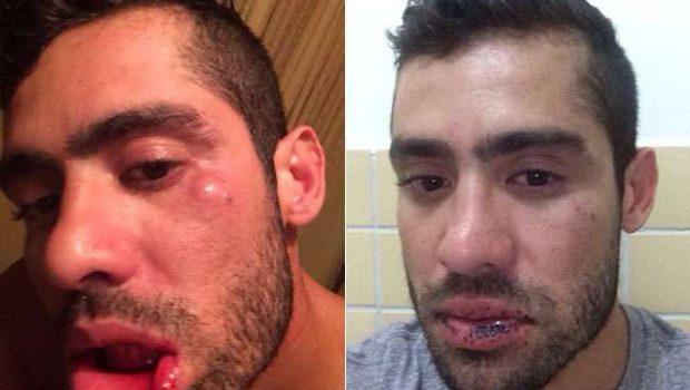 Yuri Fernandes mostra hematomas após briga com namorada