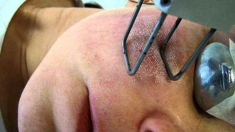 Justiça condena médico por queimar rosto de paciente durante procedimento estético
