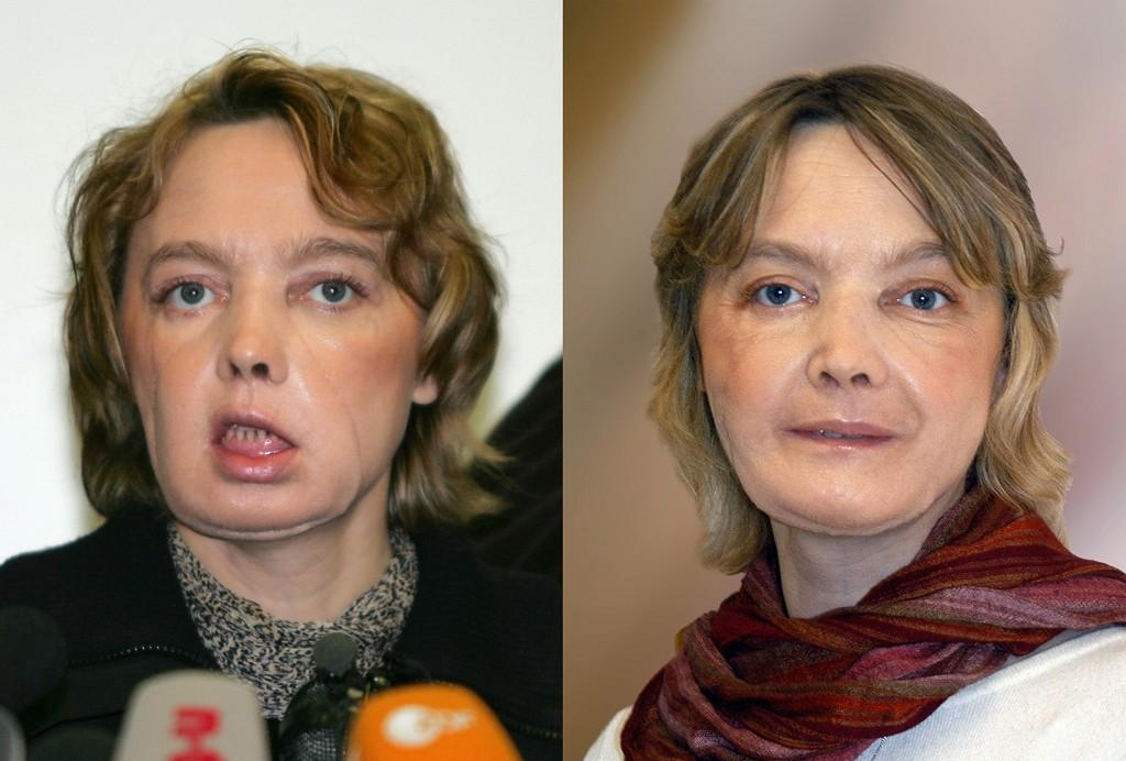 Morre primeira mulher com rosto transplantado no mundo