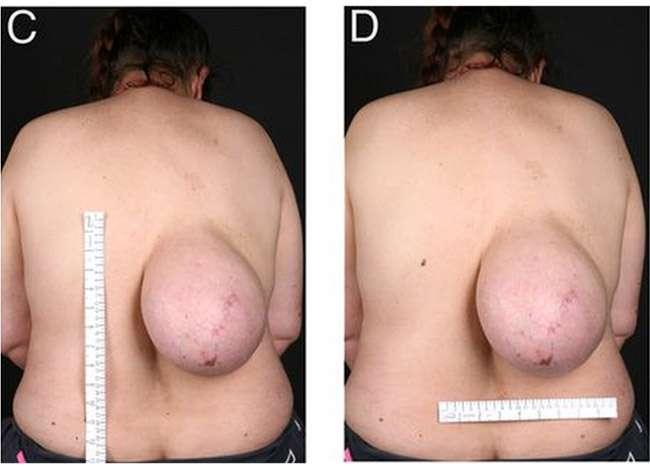 Mulher chama atenção com um grande tumor nas costas
