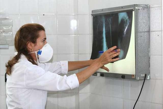 Exame para detectar tuberculose torna diagnóstico 100% mais rápido