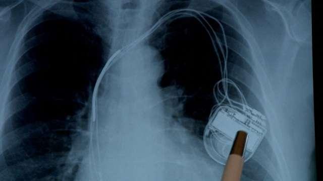 Máfia das próteses paga comissão por implantes cardíacos desnecessários
