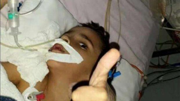 Gêmeo siamês Heitor tem melhora no intestino, diz hospital