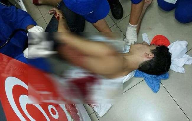 Jovem é baleado nas costas durante tentativa de assalto