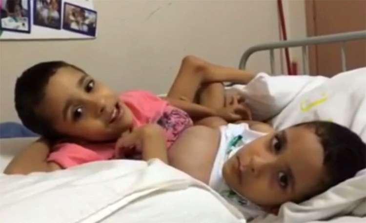 É grave o estado de saúde dos gêmeos Arthur e Heitor, diz hospital