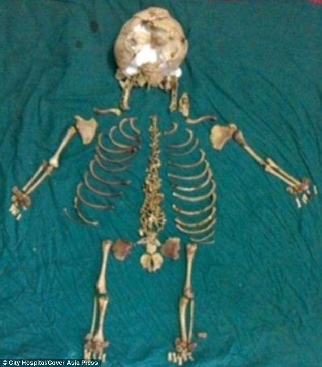 Feto é extraído do corpo de mulher indiana depois de 36 anos