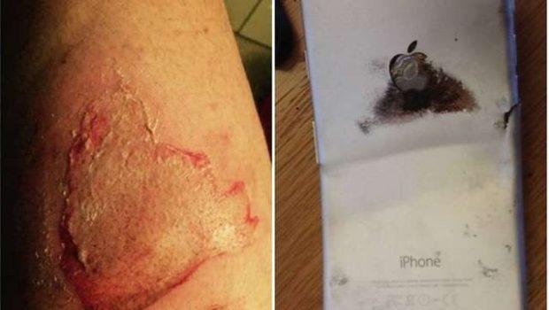 IPhone 6 pega fogo dentro do bolso de empresário americano