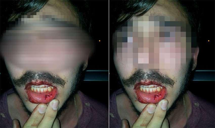 Estudante de direito é agredido por policial à paisana dentro de estacionamento da PUC-GO