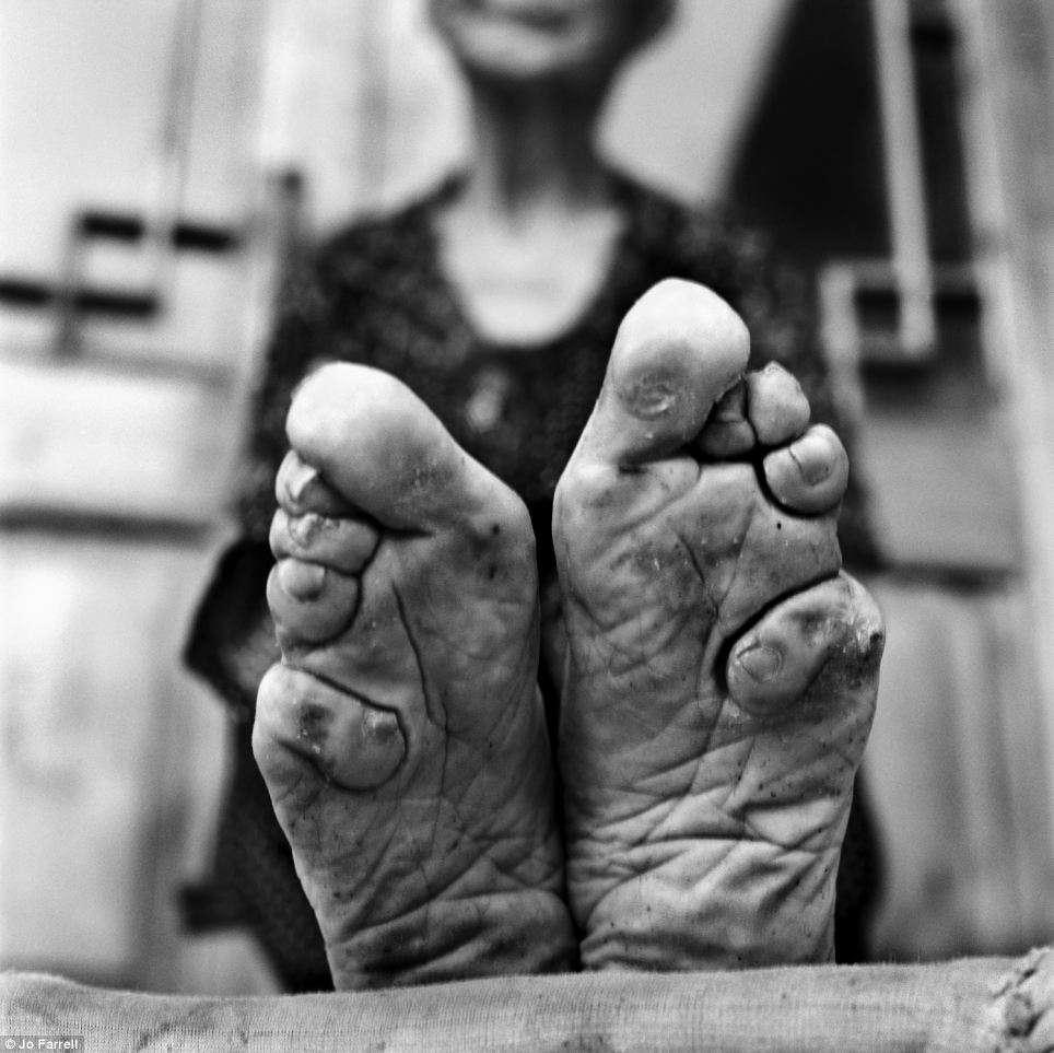 Chinesas eram obrigadas a deformar os pés para poderem casar