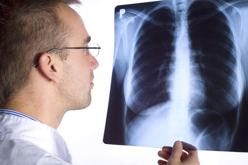 Entenda o que causa embolia pulmonar