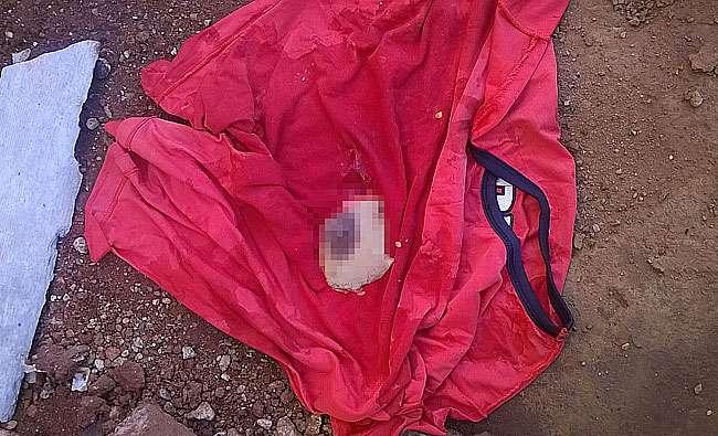 Mamilo de uma mulher é encontrado jogado dentro de lixo, em Goiânia