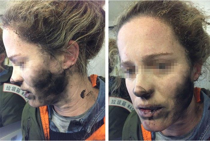 Mulher sofre queimaduras na explosão de fones de ouvido em voo