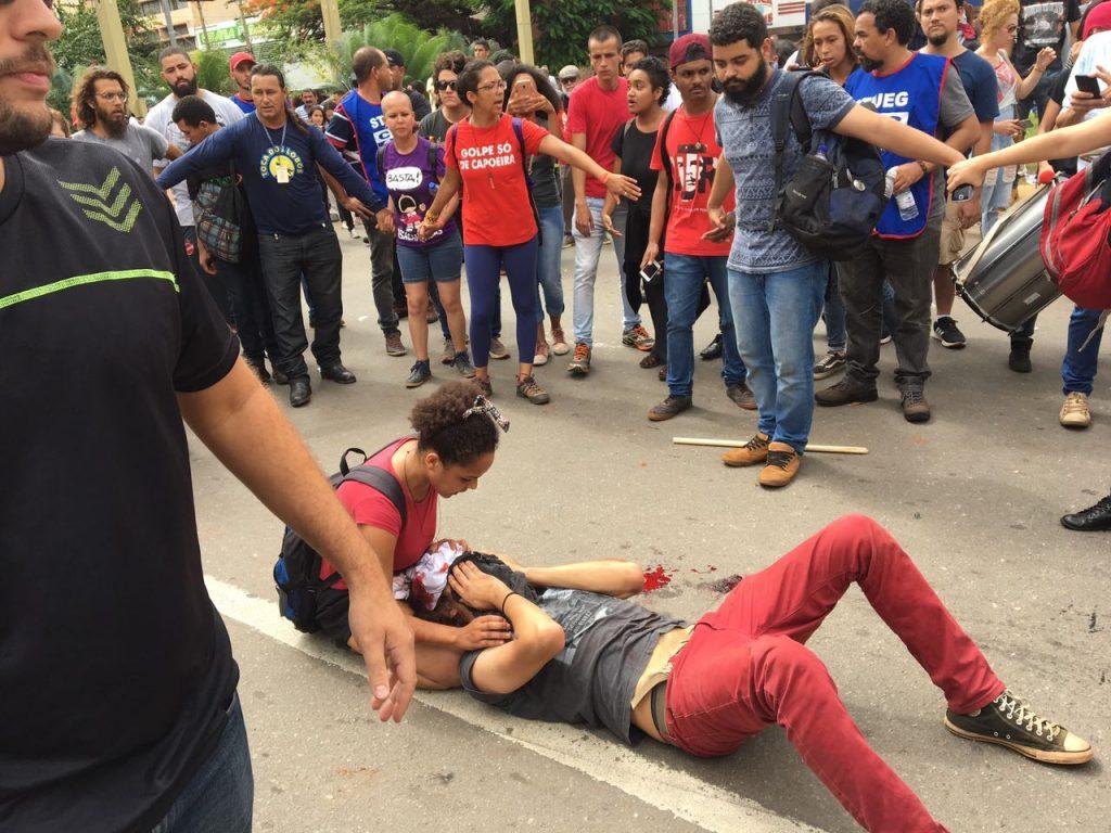 Estudante agredido por PM continua em estado grave