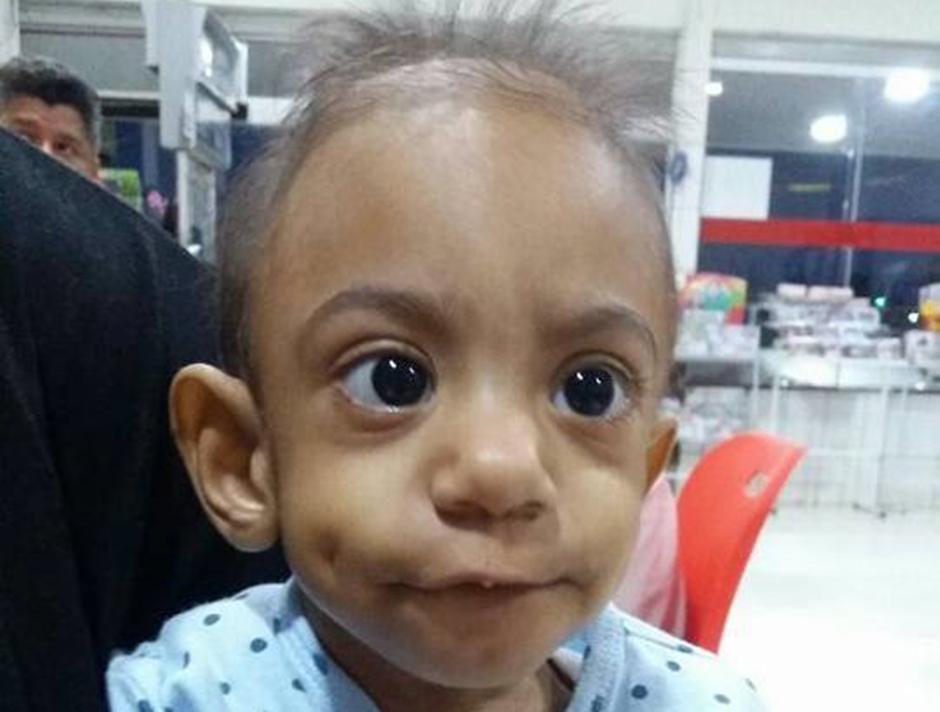 Menino portador da Síndrome da Imunodeficiência Combinada Grave morre em Goiânia