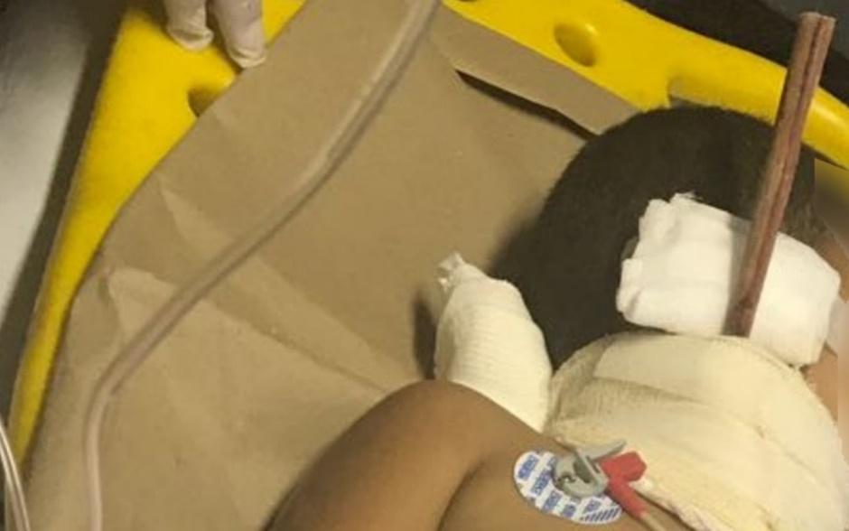 Criança tem pedaço de madeira transfixado no pescoço após queda, em Catalão