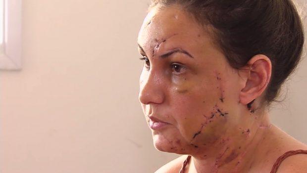 Estudante conta momentos de pânico que viveu antes de ser ferida por namorado no motel, em Aparecida