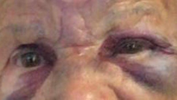Idosa é agredida durante tentativa de assalto em Morrinhos