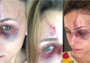 Brasileiro acusado de espancar namorada é preso nos EUA