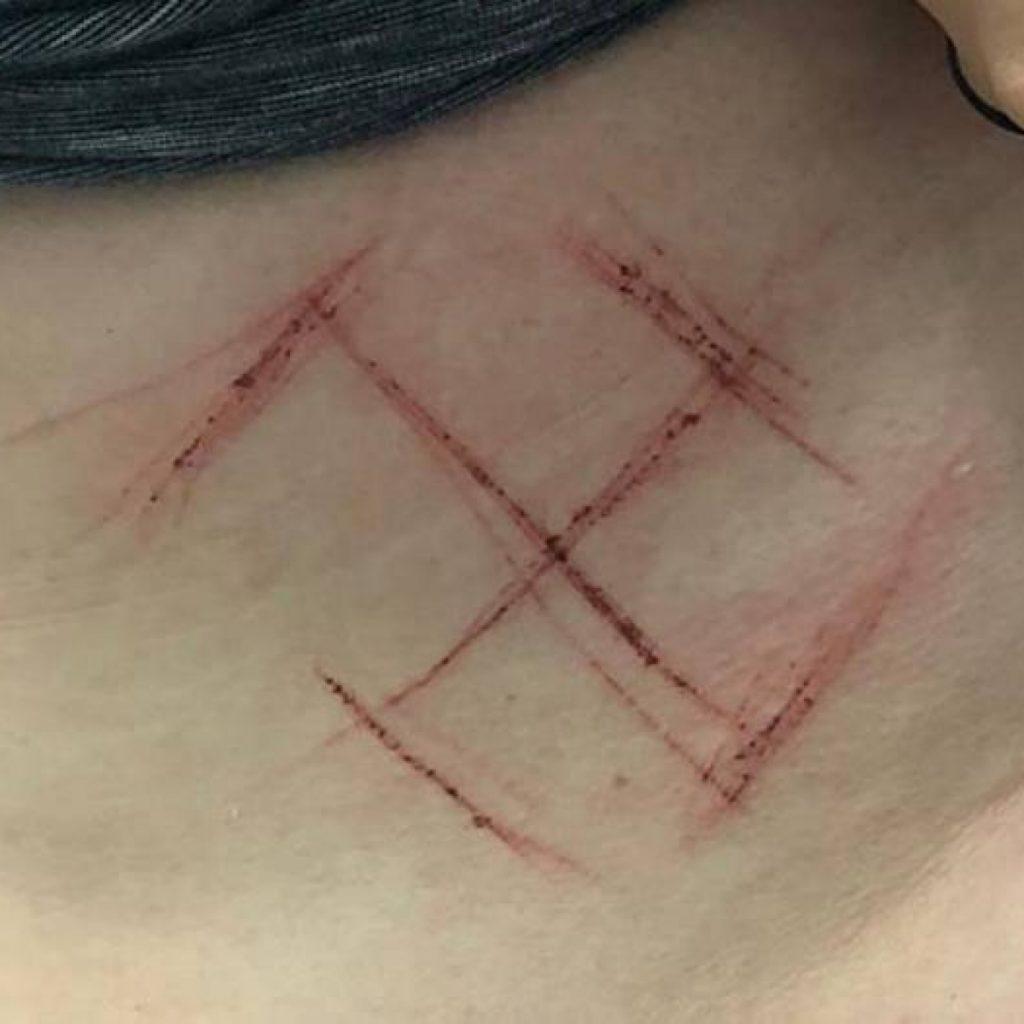 Jovem marcada com suástica no RS será indiciada por falso testemunho