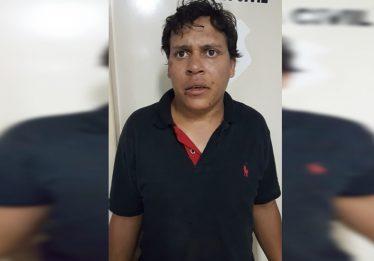Mulher que teve lábio arrancado com mordida sofria agressões do companheiro, afirma Polícia Civil
