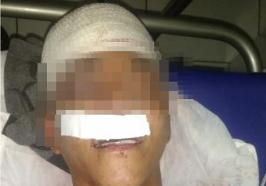 Torcedores interrompem festa e agridem homem com paulada na cabeça em Goiânia