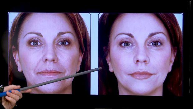 Dentistas são autorizados a fazer harmonização facial e divulgar resultados