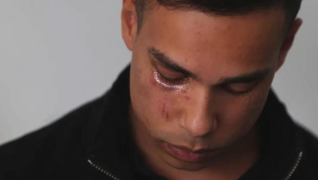 """""""Apanhei porque sou gay"""": vítimas narram histórias de preconceito no Dia contra a Homofobia"""