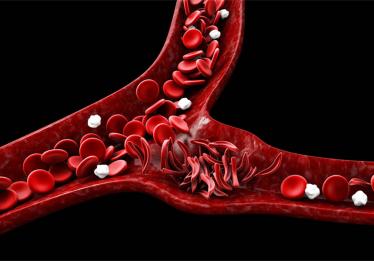 Hemocentro promove atividade de conscientização sobre a Doença Falciforme em Goiânia na segunda (17)