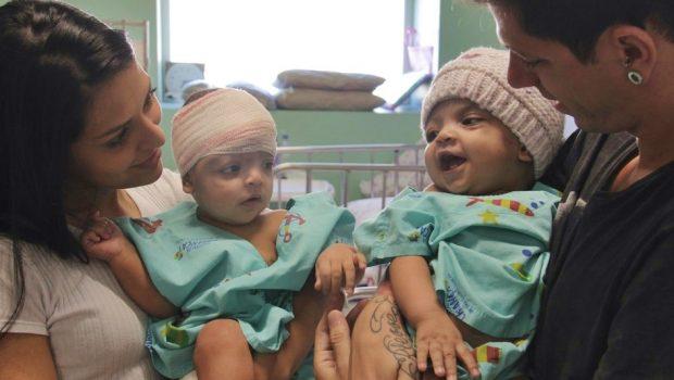 Médicos que separaram gêmeas siamesas Mel e Lis são homenageados, no DF